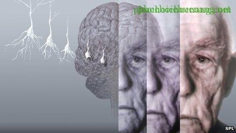 alzheimer_s_disease 2