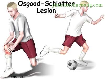 Bệnh Osgood-Schlatter(viêm khớp gối trẻ em) Nguyên nhân và cách trị 1