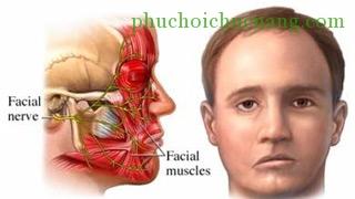 Phương pháp vật lý trị liệu chữa liệt mặt ngoại biên