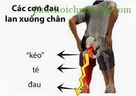 Phục hồi chức năng thoát vị đĩa đệm cột sống thắt lưng