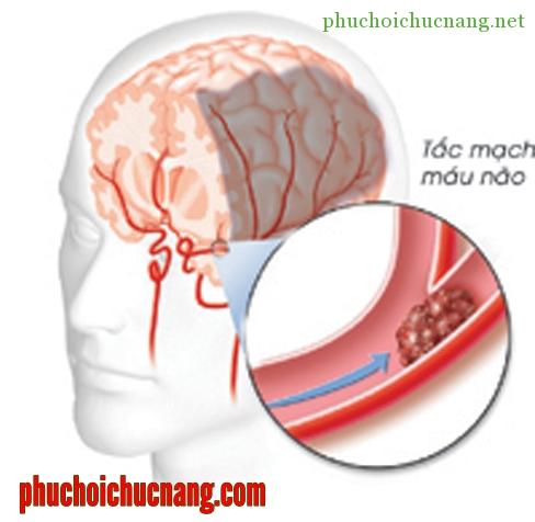 vật lý trị liệu khi bị tai biến mạch máu não