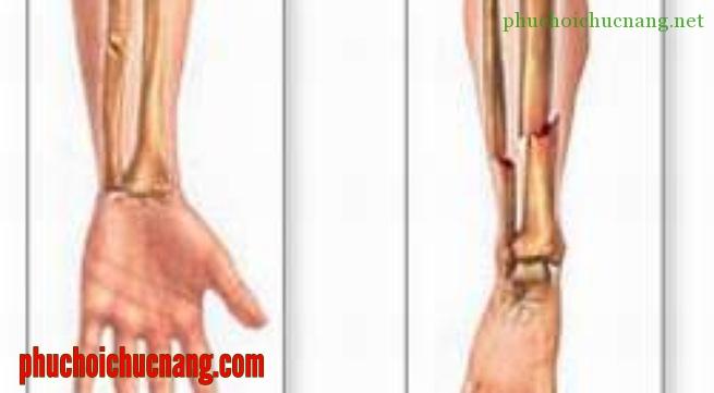 Vật lý trị liệu phục hồi chức năng sau gãy xương