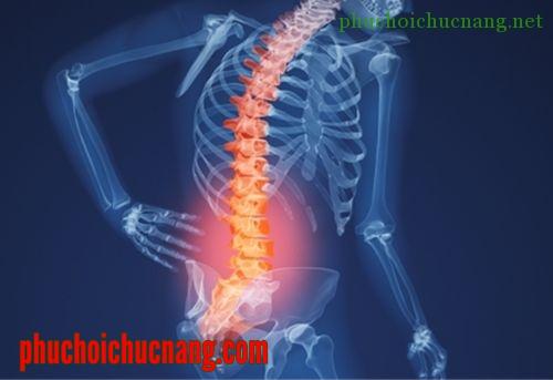 Phục hồi chức năng Thoái hóa cột sống thắt lưng