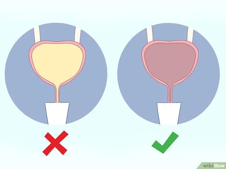Tống sạch nước tiểu trong bàng quang trước khi tập bài tập Kegel