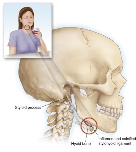Hội chứng xương móng: Một hội chứng đau thường gặp nhưng dễ bị bỏ qua