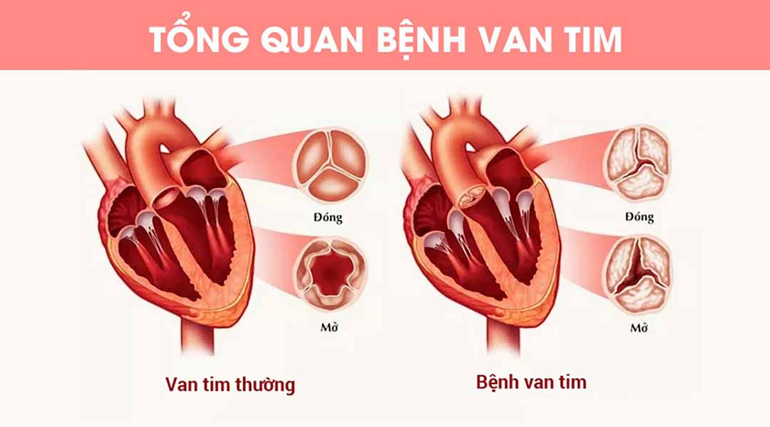 Triệu chứng bệnh van tim